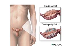 Síndrome del ovario poliquístico o de Stein Leventhal