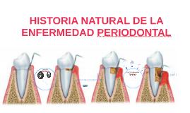 HISTORIA NATURAL DE LA ENFERMEDAD PERIODONTAL