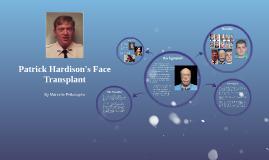 Patrick Haridson's Face Transplant