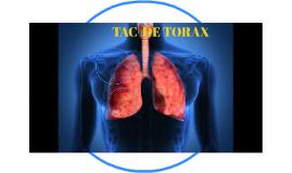 TAC  DE TORAX