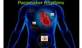 Pacemaker Ryhythms