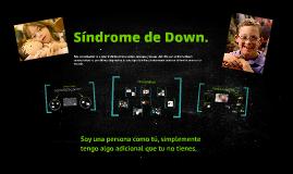 Sindrome de Down.