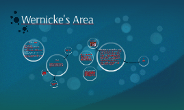 Wernicke's Area