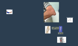 Synovial Joint: Te Elbow