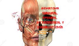 HEMATOMA SUBDURAL, EPIDURAL E INTRACRANEAL