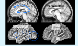 The Reading Brain