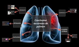 Carcinoma  escamoso de pulmón