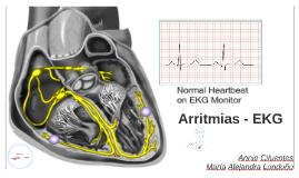 Arritmias - EKG