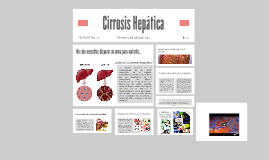 Copy of Cirrosis Hepática