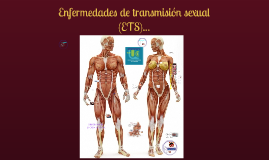 Copy of Enfermedades Transmisión Sexual
