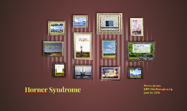 Horner Syndrome