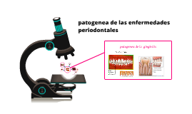 patogenea de las enfermedades periodontales