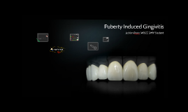 Puberty Induced Gingivitis