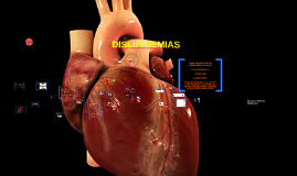 Copy of HIPERTENSION  ARTERIAL SISTEMICA