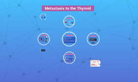 Metastasis to the Thyroid