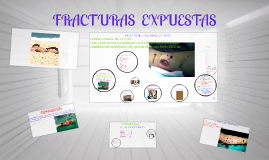 Copy of FRACTURAS  EXPUESTAS
