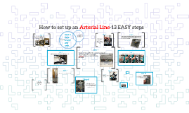 How to set up an Art Line