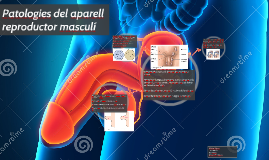 Patologies del aparell reproductor masculí