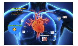 Zonas Cardioprotegidas