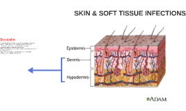 SKIN & SOFT TISSUE INFECTIONS