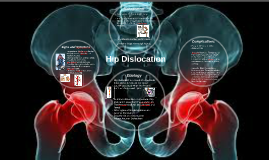 Dislocations of the Hip