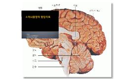 Brain tumors and chemotherapy