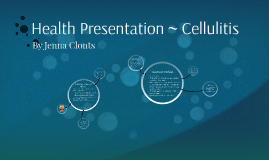 Health Presentation ~ Cellulitis