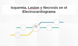 Isquemia, Lesion y Necrosis en el Electrocardiograma