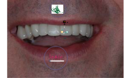 CD01: Denture Assessments I (Data collection and examination)