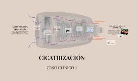 Copy of CICATRIZACIÓN