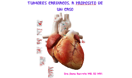 TUMORES CARDIACOS. A PROPOSITO DE UN CASO