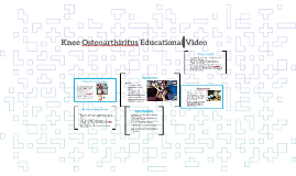Knee Osteoarthiritus Education Video