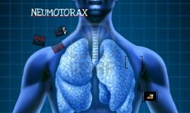 Copy of Copy of Neumotórax a tensión