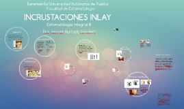 INCRUSTACIONES INLAY