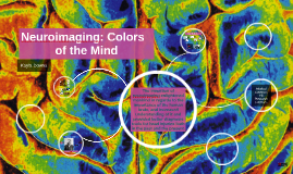 Copy of Copy of Neuroimaging: Colors