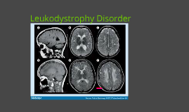 Leukodystrophy Disorder