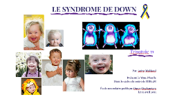 Syndrome de Down - Aziza Makboul