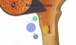 Edema de Medula Óssea