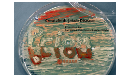 Copy of Creutzfeldt-Jakob Disease