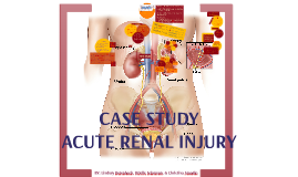282 ACUTE RENAL INJURY- Case Study