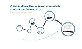 A giant solitary fibrous tumor successfully resected via thoracotomy