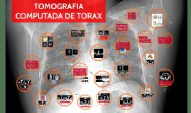 TOMOGRAFIA COMPUTADA DE TORAX