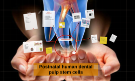 Postnatal human dental pulp stem cells