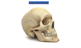 Cirugía de Base de Cráneo