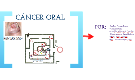 Copy of Cáncer Oral