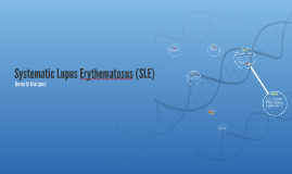 Systematic Lupus Erythmatosus