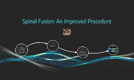 Spinal Fusion: An Improved Procedure