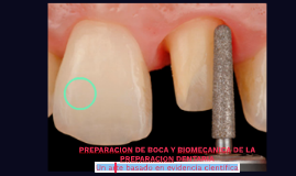 PREPARACION DE BOCA Y BIOMECANICA DE LA PREPARACION DENTARIA