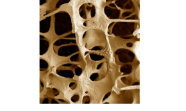 Osteoporose é uma doença óssea sistêmica caracterizada por b