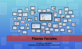 Copy of Fisuras Faciales